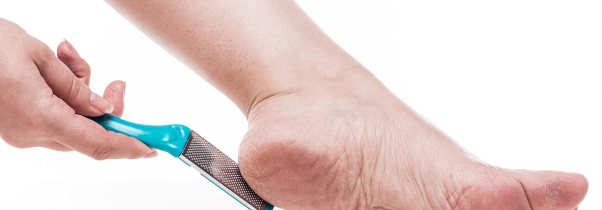 Calluses treatment