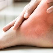 Ankle Injuries Austin TX